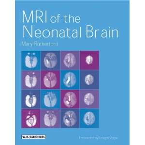 MRI of the Neonatal Brain (9780702025341) Mary A